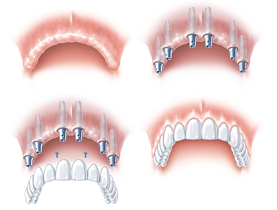 """Implantat """"Zahnlos"""""""