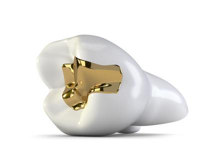Zahnarzt Bellmann Langenhagen Füllung