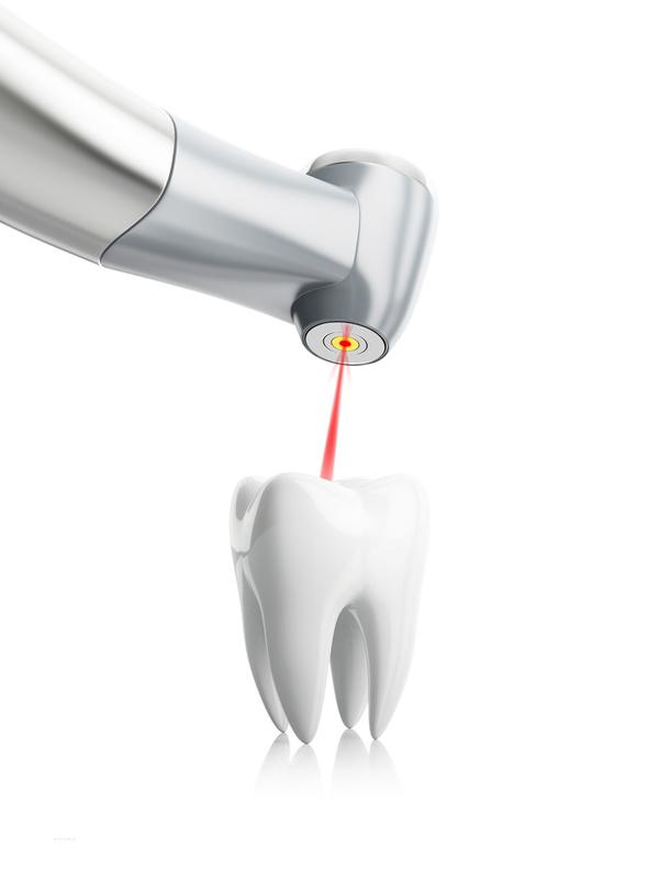 Zahnarzt Bellmann Langenhagen Laserbehandlung