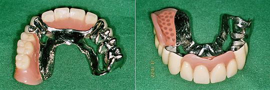 herausnehmbare Prothese
