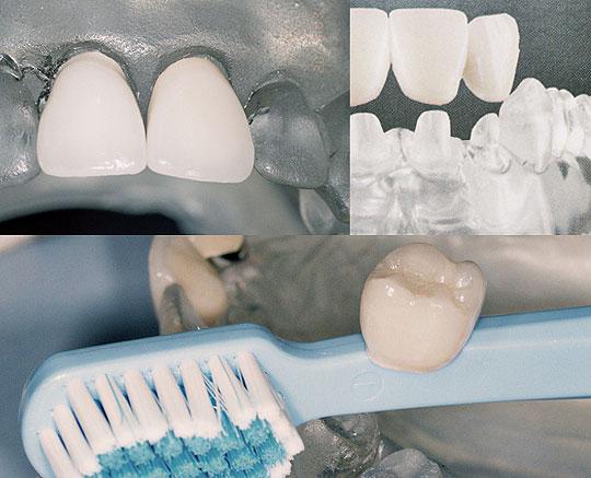 Zahnersatz aus Vollkeramik
